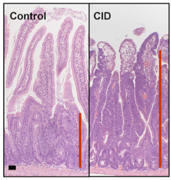 Comparison: appearance of colon cells