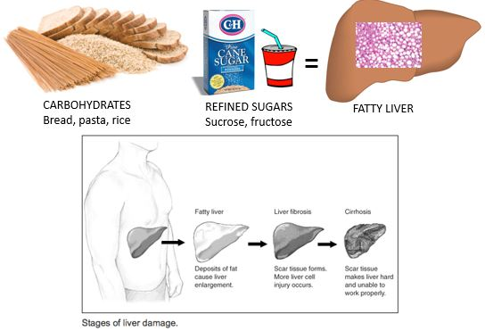 Stages of Liver Damage