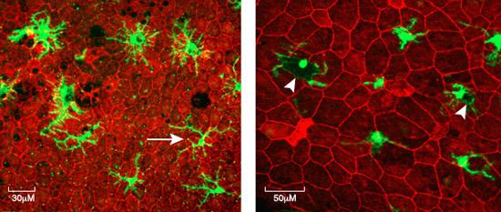 microglia-active-overactive