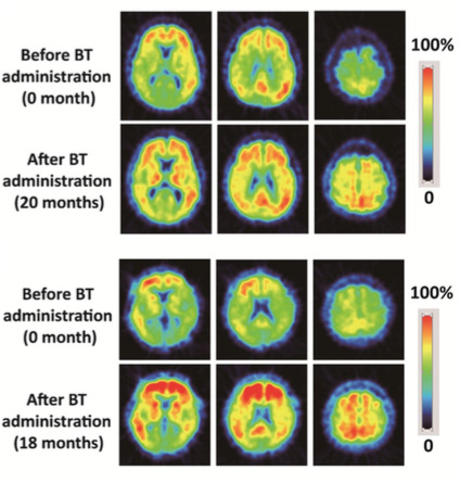Brain scans: Before And After BenfoThiamine