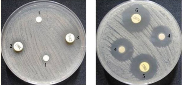 Candida fungus: lab dish vs lab dish with garlic