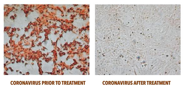 COmparison: Coronavirus prior and after treatment