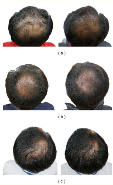Hair loss - comparison