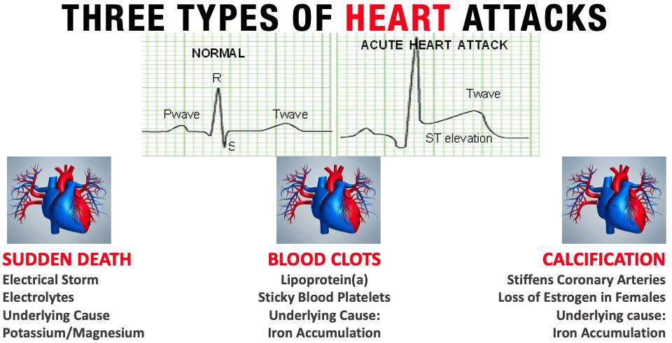 3 types of Heart Attack