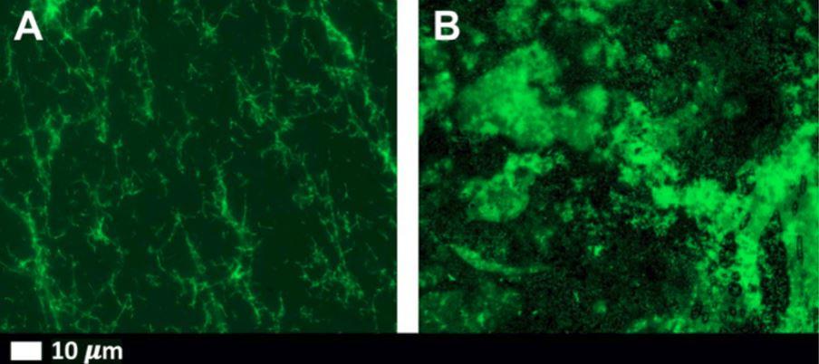 comparison: micro-clots