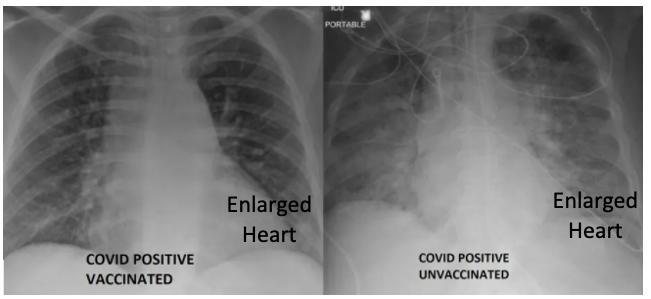 X-ray: comparison vaccinated vs unvaccinated